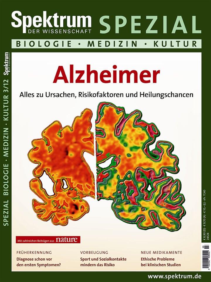 Heftcover Spektrum der Wissenschaft Spezial Biologie – Medizin – Kultur 3/2012 Alzheimer