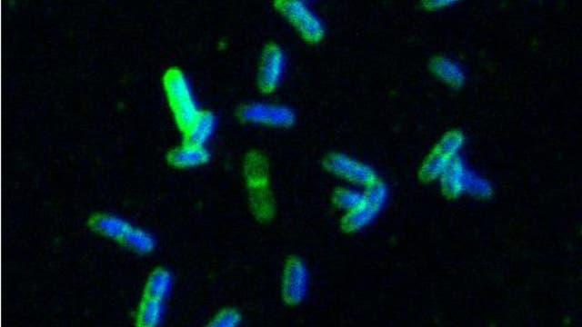 Antikörper binden an Salmonellen