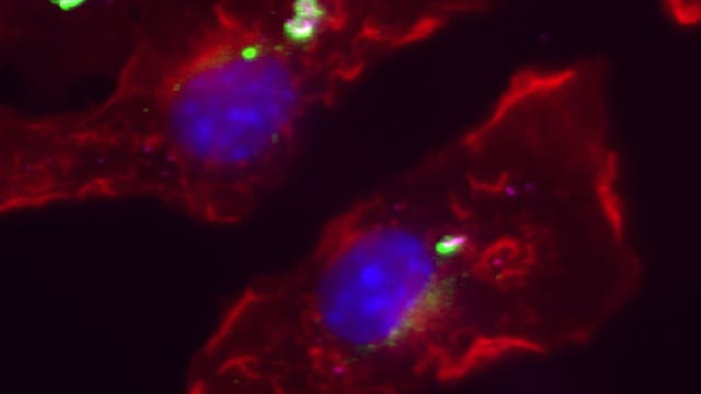 Abwehrprotein verteidigt Körperzelle