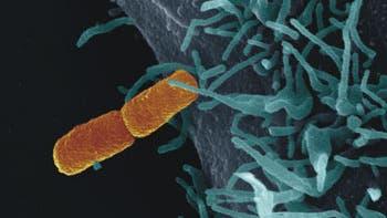 Kontakt: Bakterium an Zelle