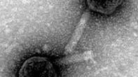 Cholerabakterium befallende Vibriophagen