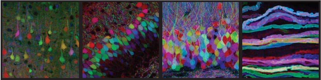 Bunt markierte Neuronen