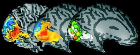 Gehirnaktivität im visuellen Kortex