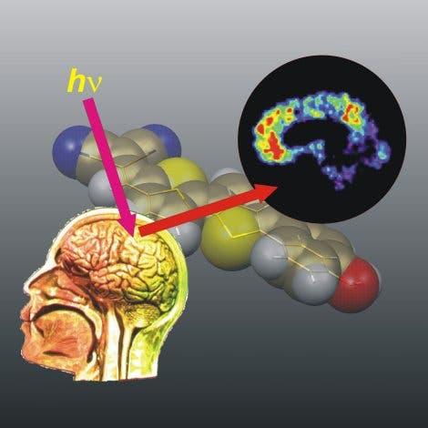 Frühdiagnose von Alzheimer