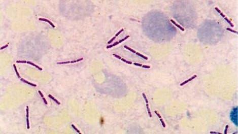 <i>Bacillus anthracis</i>