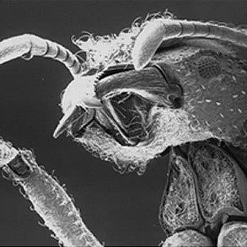 Ameisenkörper unter dem Elektronenmikroskop