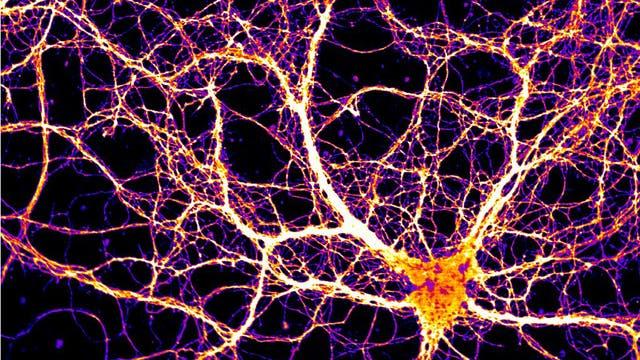 Arc wird vor allem in den Nervenzellausläufern, den Dendriten, erzeugt