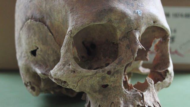 Schädel einer toten Wikingerfrau