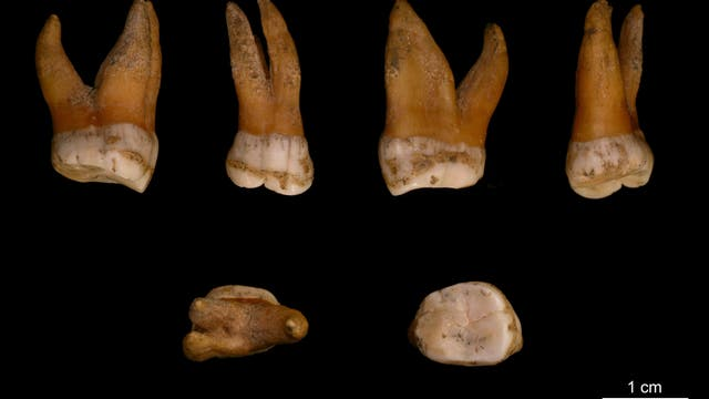 Neandertaler-Zähne