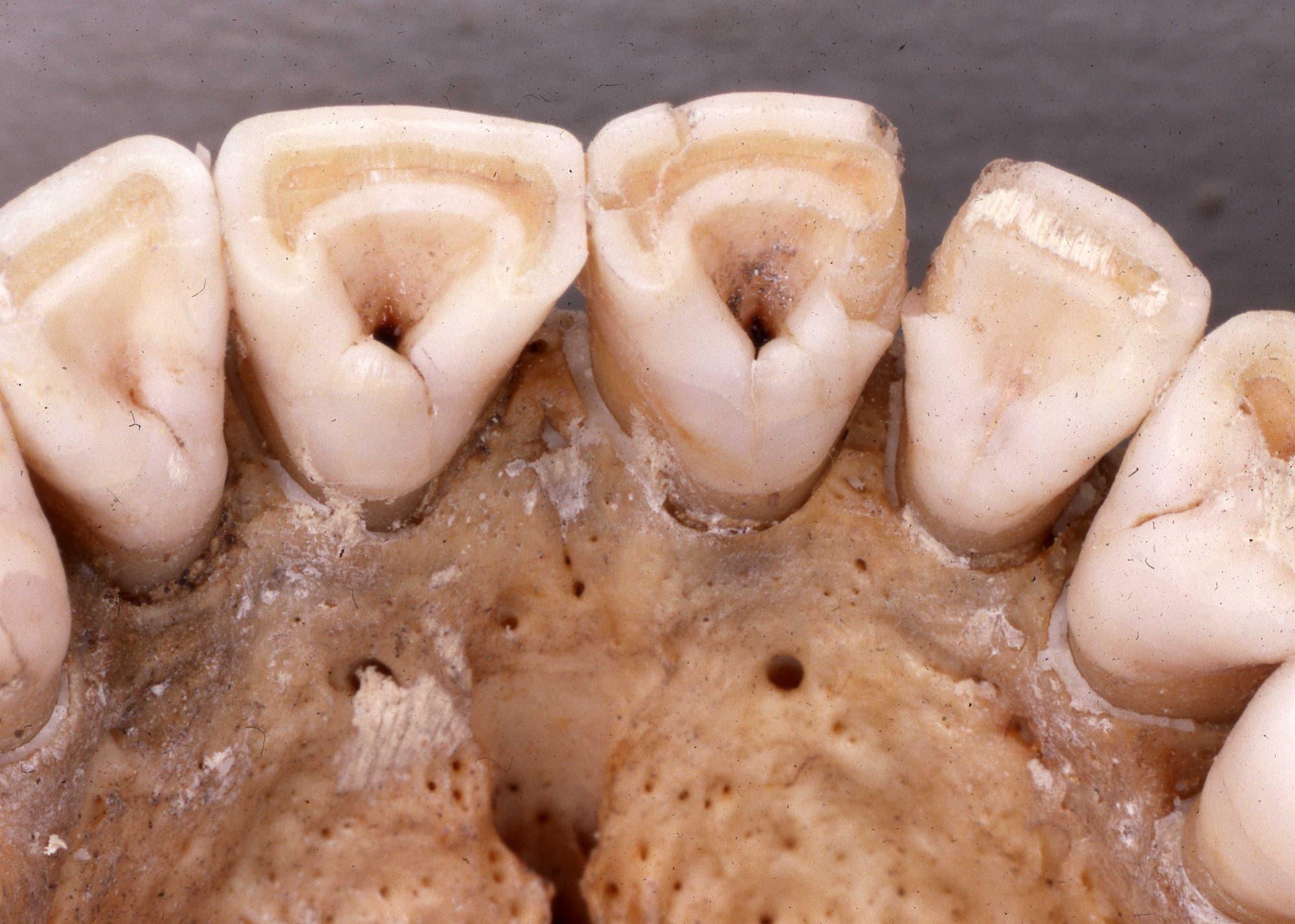 Typische Zahnform früher Amerikaner