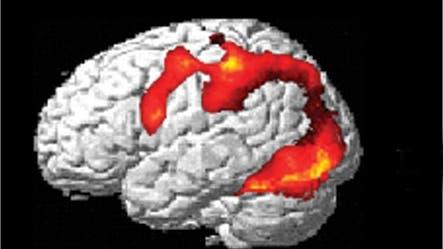 Gehirn im fMRI