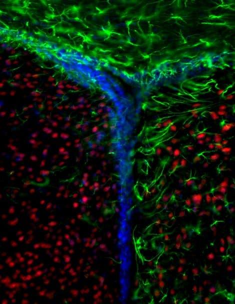 Neurogenese