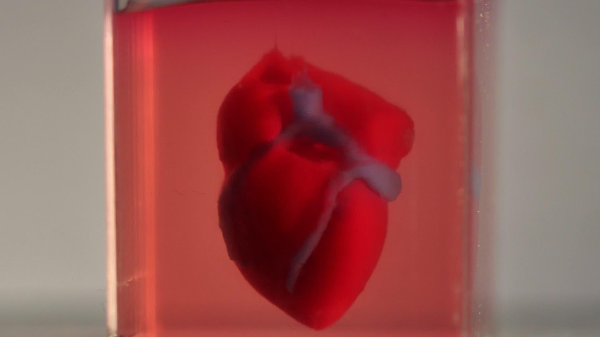 Das Herz aus dem Drucker