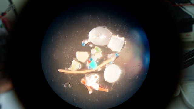 Plastikpartikel unter dem Mikroskop