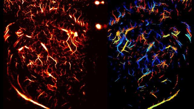 Ultraschallbild eines Rattenhirns