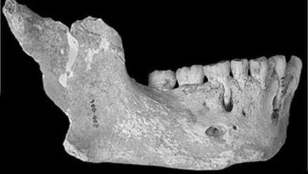 Neandertaler von El Sidrón