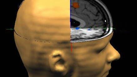 RCZ und NAc im Gehirn