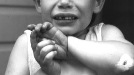 Verletztes Kind