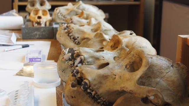 An den Zähnen von Gorillas sind typische Spuren bakterieller Besiedlung zu erkennen