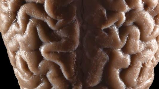 Die Grenzen des Gehirns