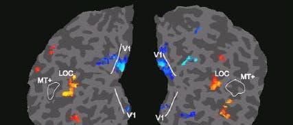 fMRI-Bilder