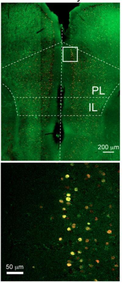 Überaktive Nervenzellen