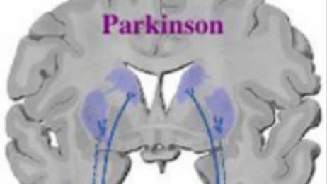 Lewy-Körperchen kennzeichnen die Parkinson-Erkrankung