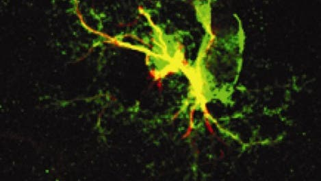 Radialgliazellen bilden neuronale Stammzellen