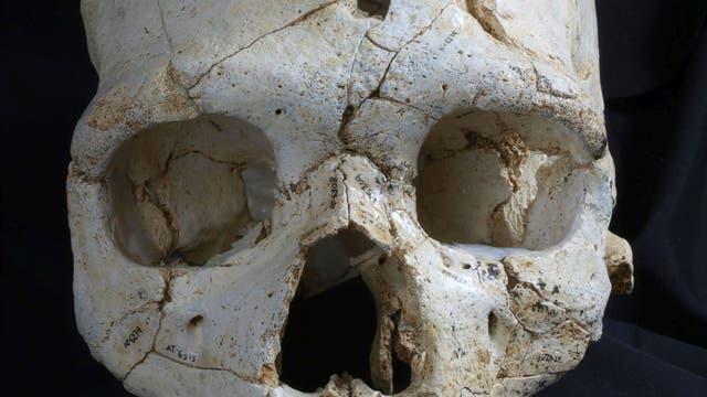Schädelknochen mit Schlagwunden