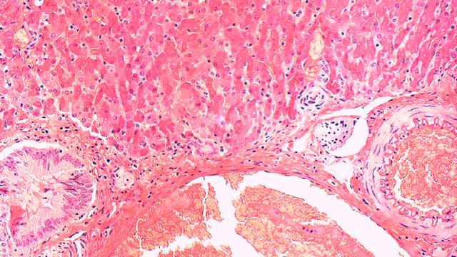 Robbenleber infiziert mit Phopivirus