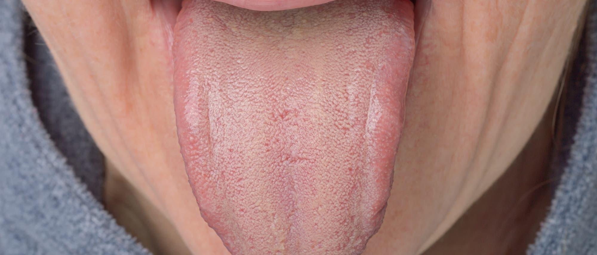 herausgetreckte belegte Zunge