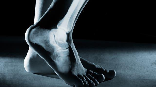 Foto und Röntgenaufnahme des menschlichen Fussgelenks