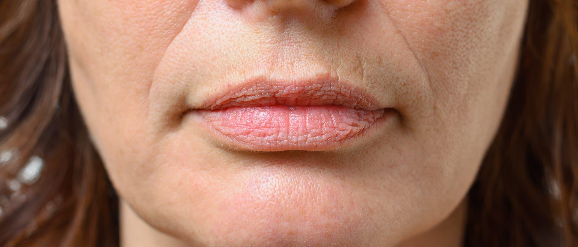 Mund- und Nasenpartie einer Frau