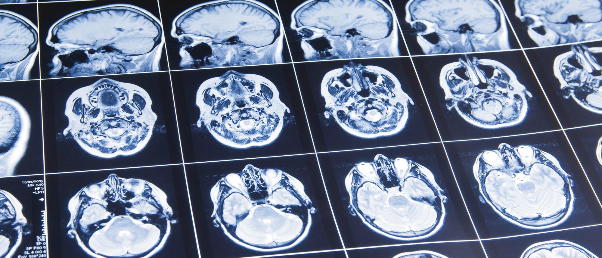 Ein niederländisches Unternehmen tüftelt  an einem Computerprogramm, das Hirnscans von Schlaganfallpatienten automatisch auswertet.