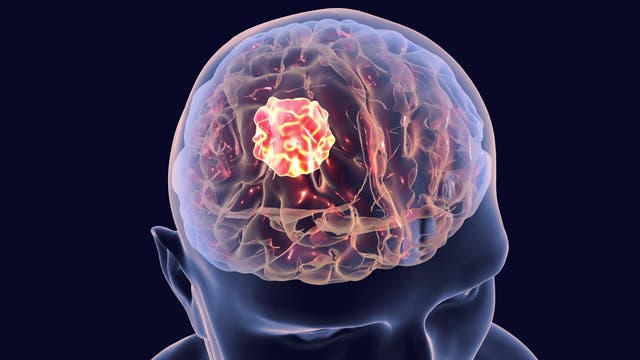 Darstellung eines halbtransparenten Kopfs mit einem roten Tumor drin.