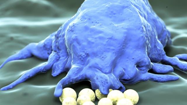 Makrophagen blockieren Chemotherapie