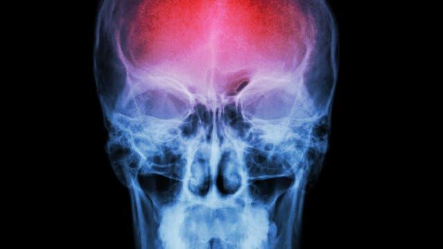 X ray skull and stroke