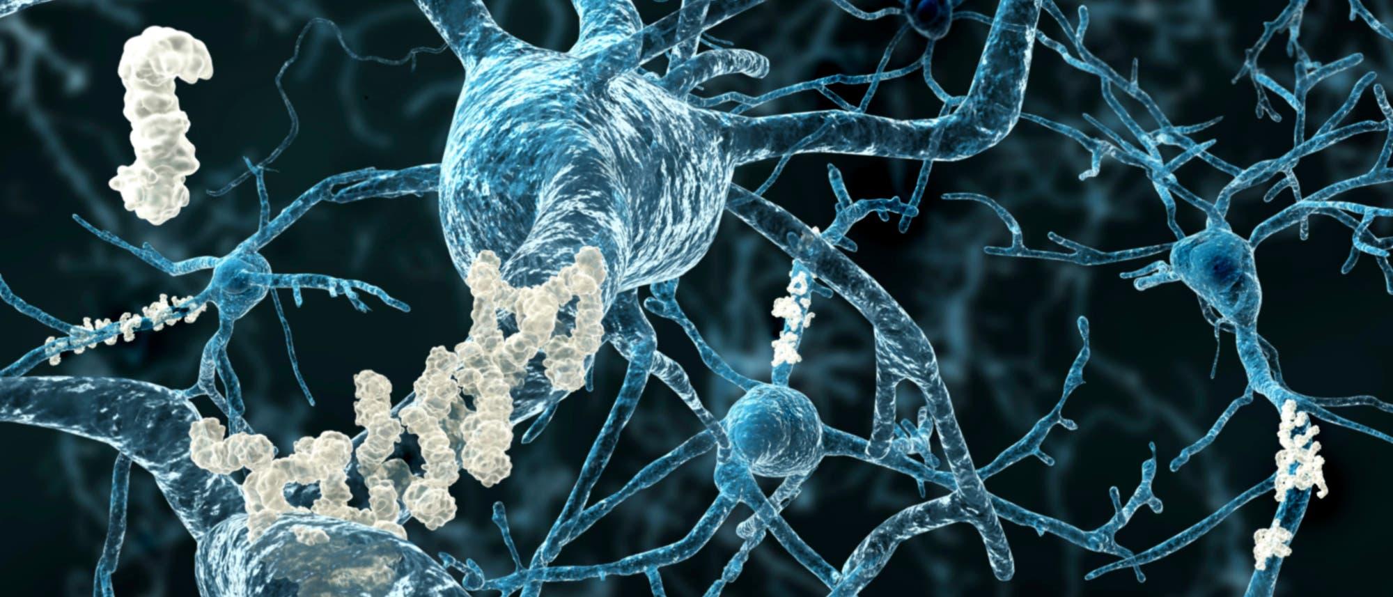 Alzheimer: Plaques zwischen Neuronen