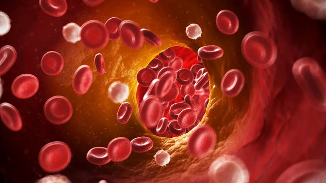 Beginnende Atherosklerose - künstlerische Darstellung