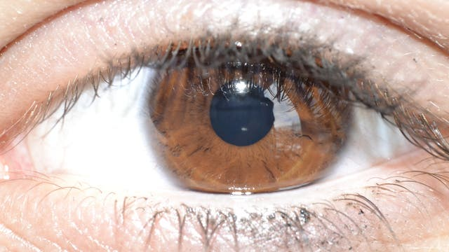 Auge mit brauner Iris