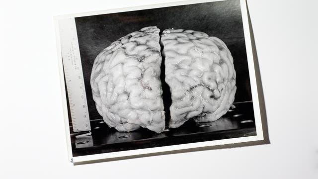 Einsteins Gehirn: Frontalansicht