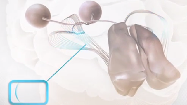 Information von sich bewegenden Objekten erfasst unser Denkorgan besonders schnell