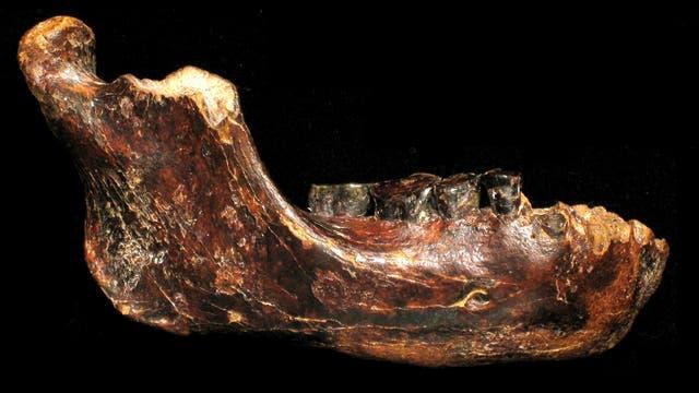 Ein halber Kieferknochen und fünf Zähne