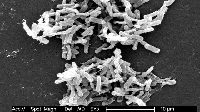 Elektronenmikroskopische Aufname von Clostridium difficilie