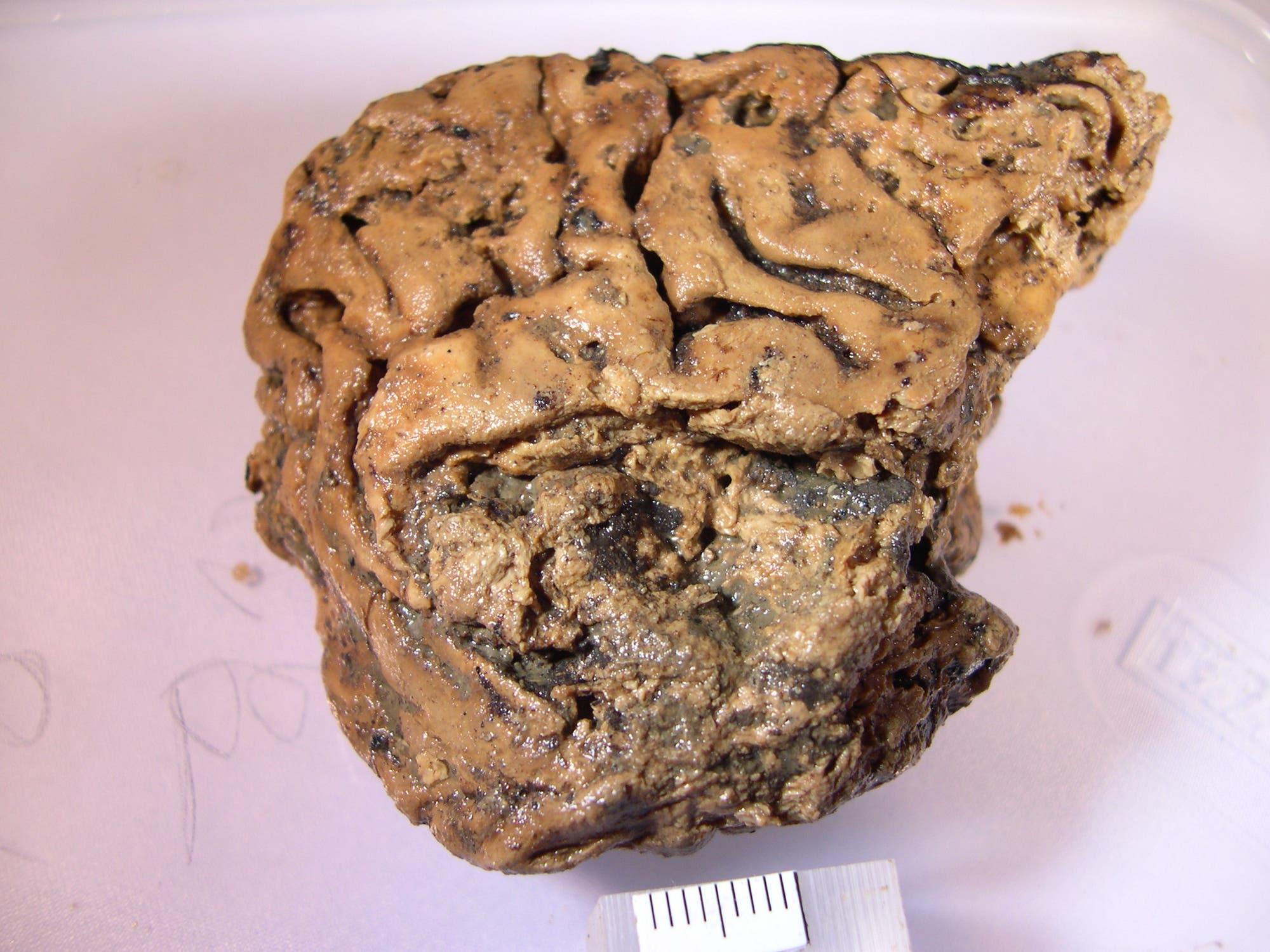 2600 Jahre altes Heslington-Gehirn