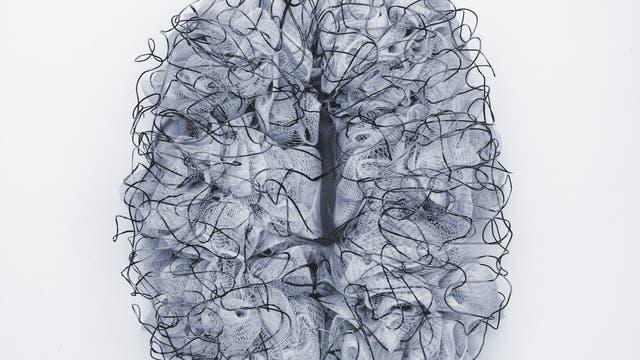 Falsch verdrahtetes Gehirn?