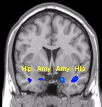 Hippokampus und Amygdala