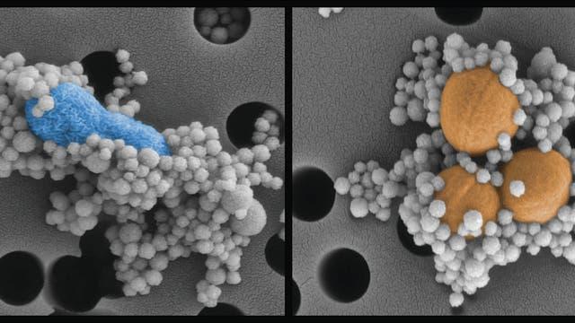 Minikügelchen binden sich an krankmachende Bakterien
