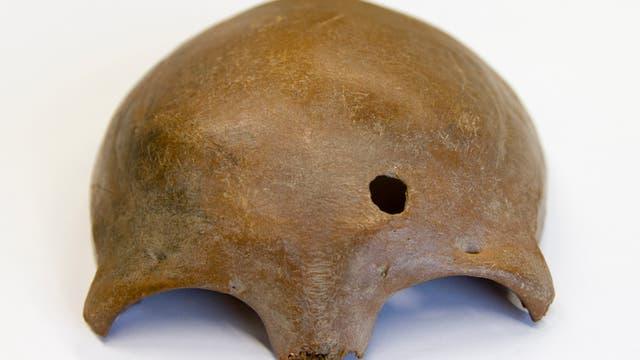 Schädel einer Frau mit Speerverletzung