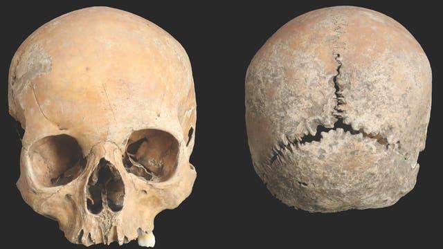 Kranium der verstümmelten Frau